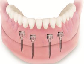 Protesis completa inferior sobre 2 implantes